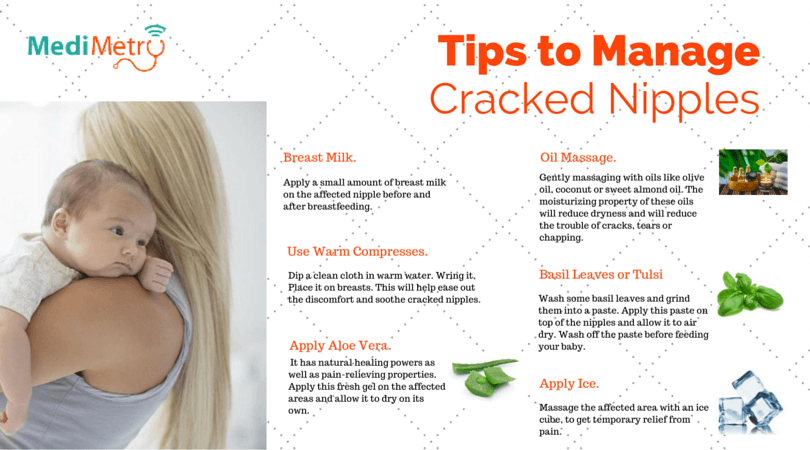 Tips to manage Cracked Nipples
